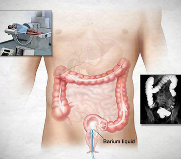 Barium Enema:::X-rays of the Lower GI Tract