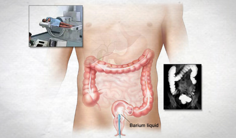 About Bowel Cancer-Barium-Enema 770