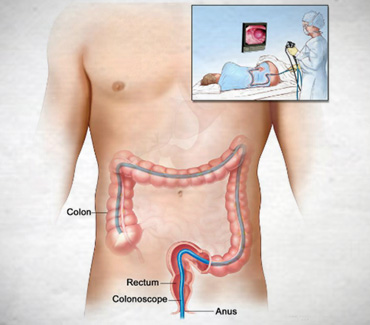 Colonoscopy:::What You Need to Know