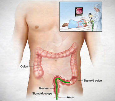 Sigmoidoscopy:::Examines the Sigmoid Colon