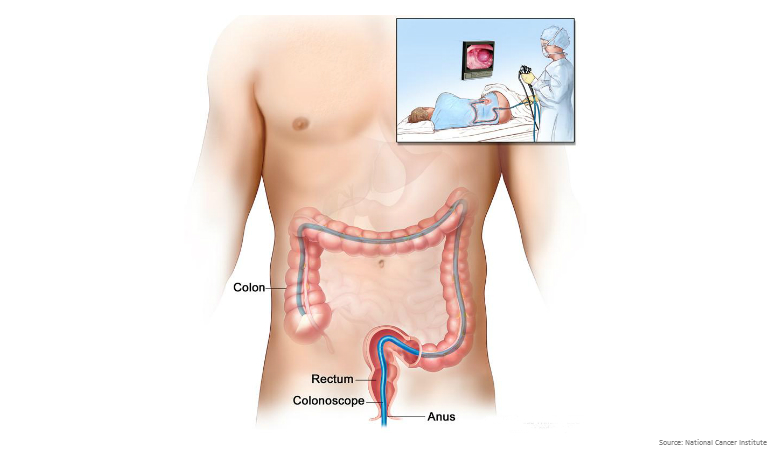 Bowel Cancer Australia_Colonoscopy