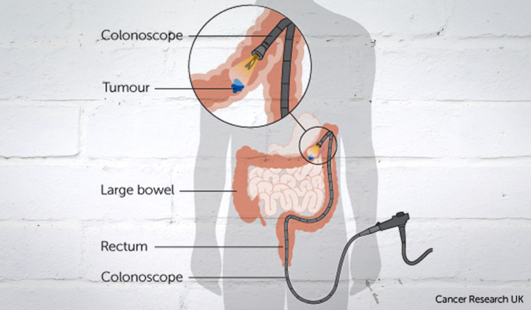 About Bowel Cancer Colonoscopy