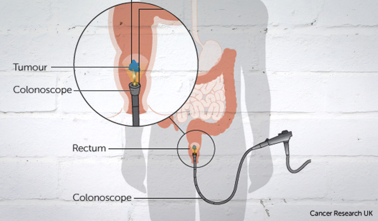 About_Bowel_Cancer_Colonoscopy_Rectal-Cancer
