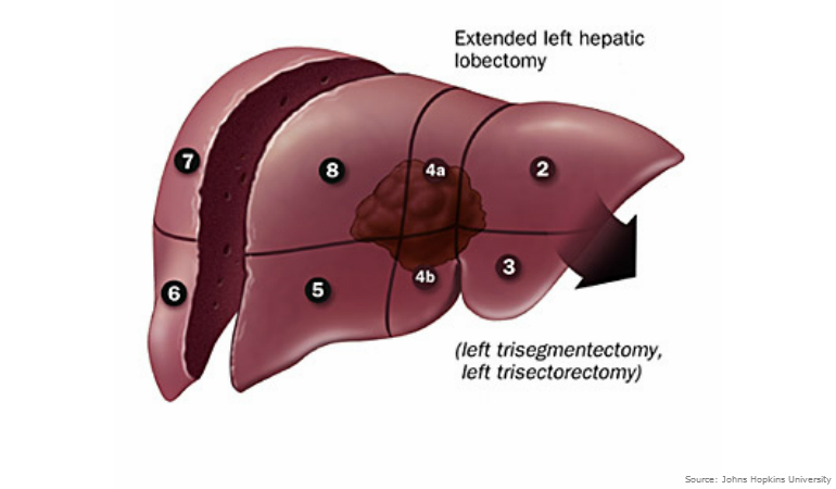 About Bowel Cancer Liver Extended Left Hepatic