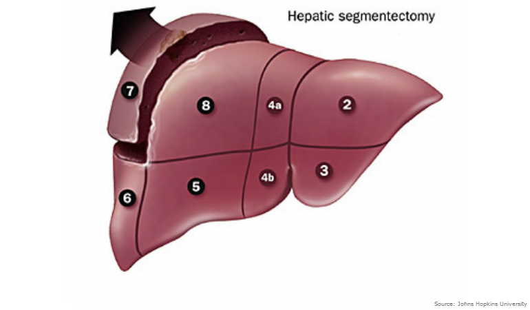 About Bowel Cancer Liver Hepatic Segment
