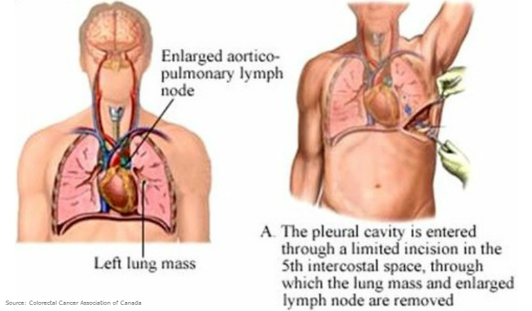About Bowel Cancer Lung Resection