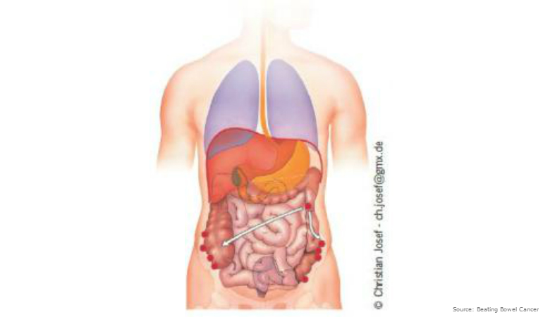 About Bowel Cancer Peritoneum