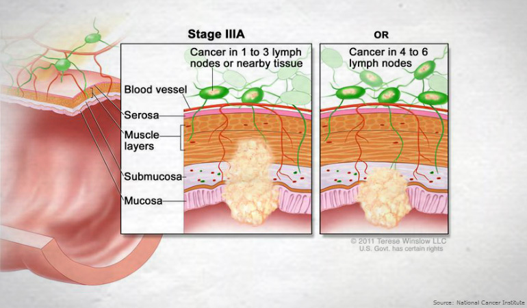 About Bowel Cancer Stage IIIA 770new