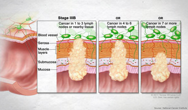 About Bowel Cancer Stage IIIB 770new