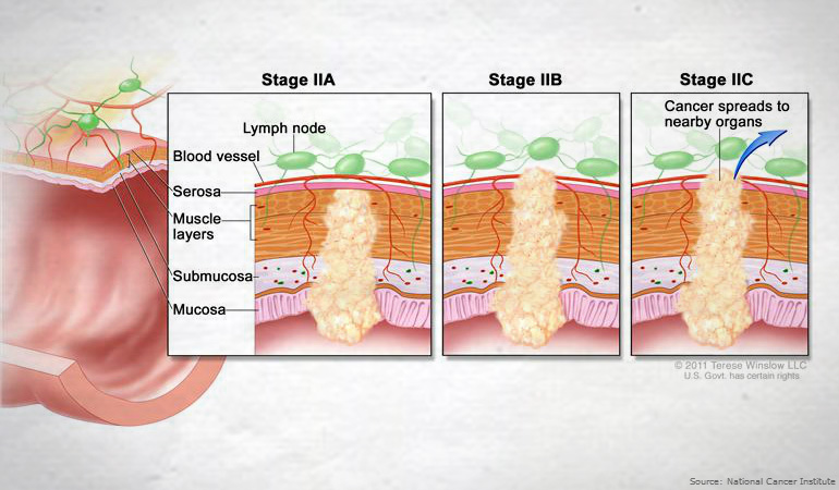 About Bowel Cancer Stage II 770new