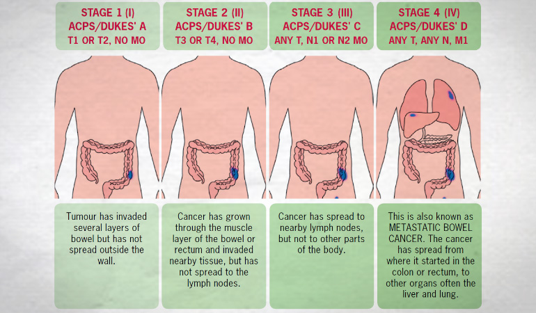 About Bowel Cancer Stages 770v1new