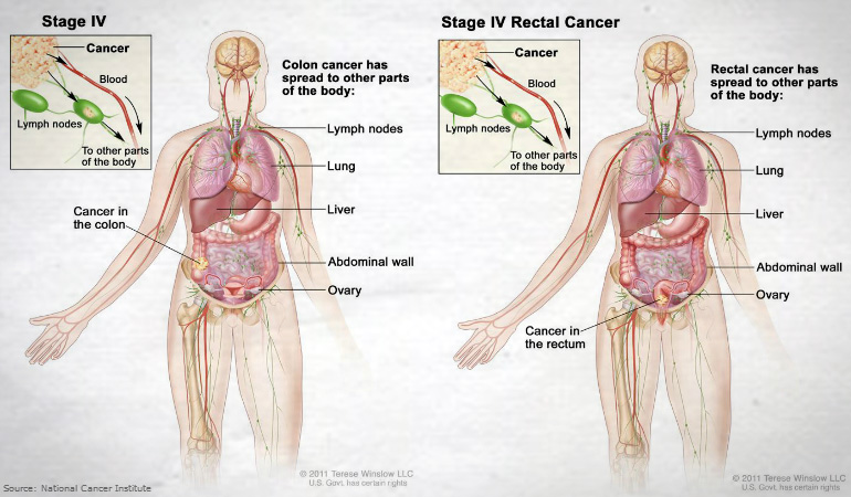 About Bowel Rectal Cancer Stage IV 770NEW