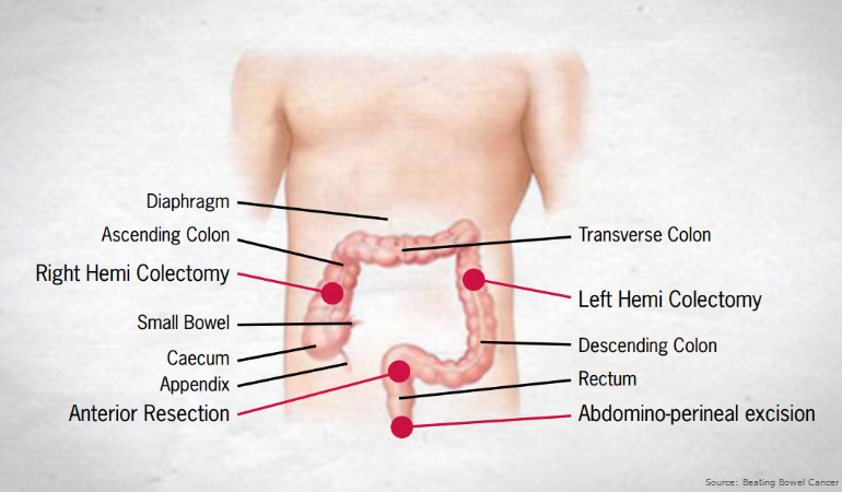 Bowel Cancer Surgery Complications Recovery