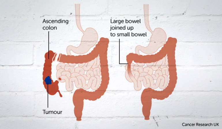 About_Bowel_Cancer_Ascending_Tumor