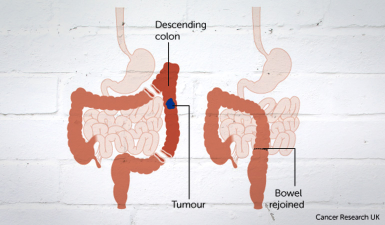 About_Bowel_Cancer_Descending_Tumor