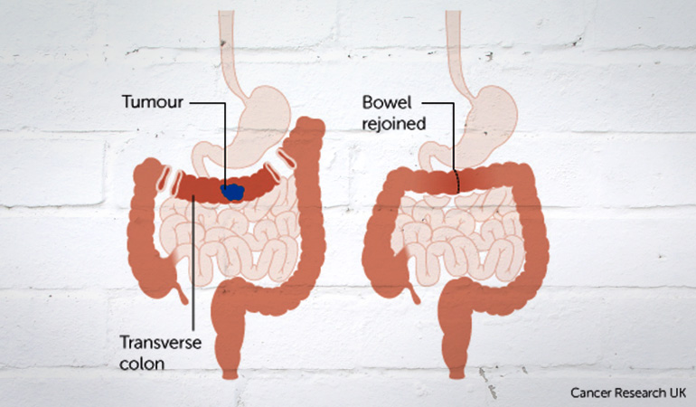 About_Bowel_Cancer_Tranverse_Tumor