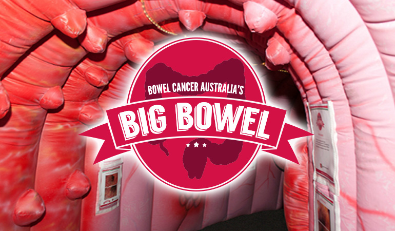 Bowel Cancer Australia Education The Big Bowel 770new