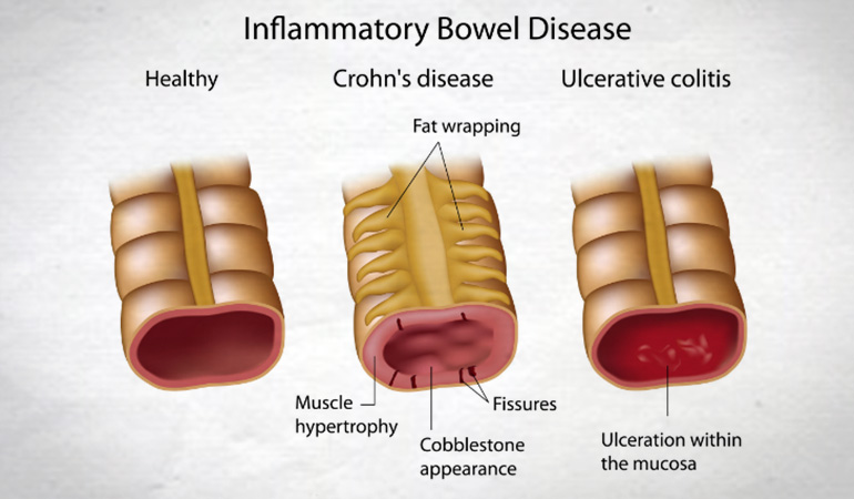 Risk inflammatory bowel disease 770new