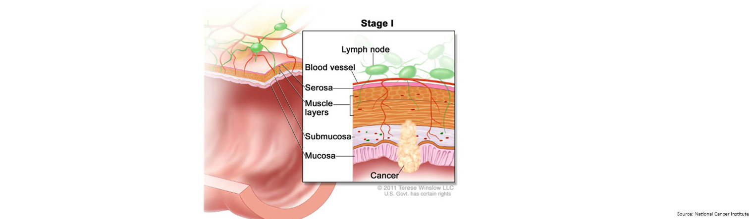 Bowel Cancer Staging Stage 1