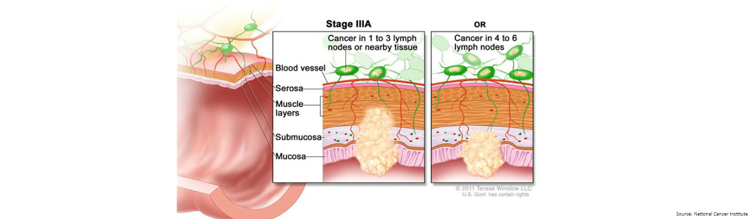 Bowel Cancer Staging Stage 3a