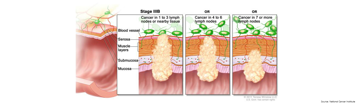 Bowel Cancer Staging Stage 3b