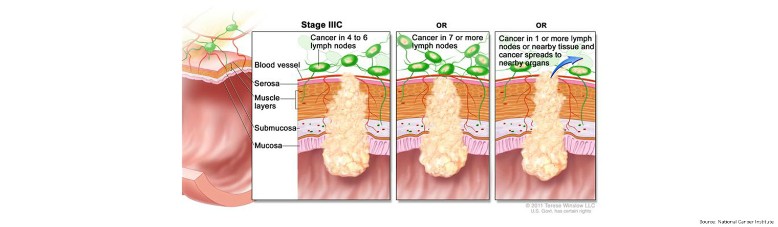 Bowel Cancer Staging Stage 3c