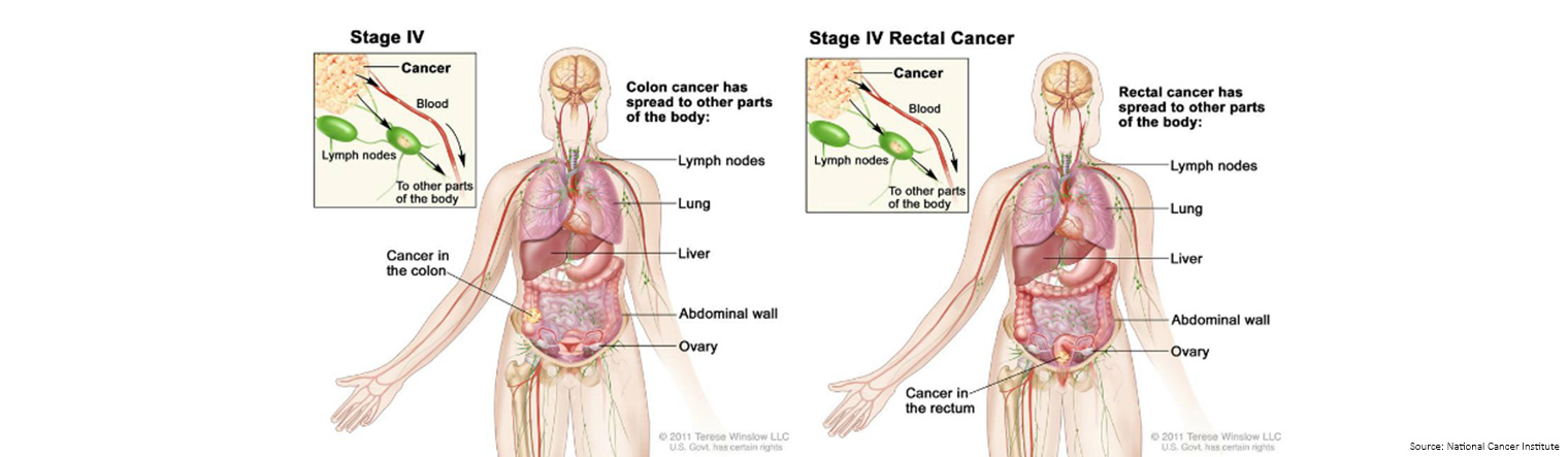 Bowel Cancer Staging Stage 4