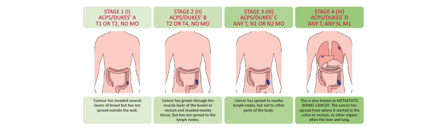 Bowel Cancer TNM Staging Systems 1