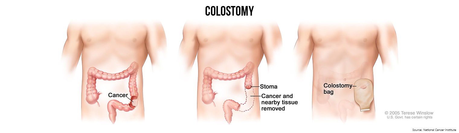 Bowel Cancer Treatment Colostomy