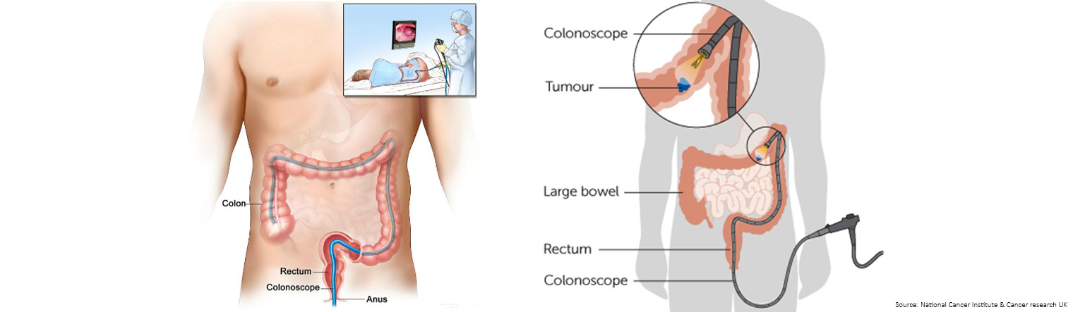 How is a colonoscopy performed