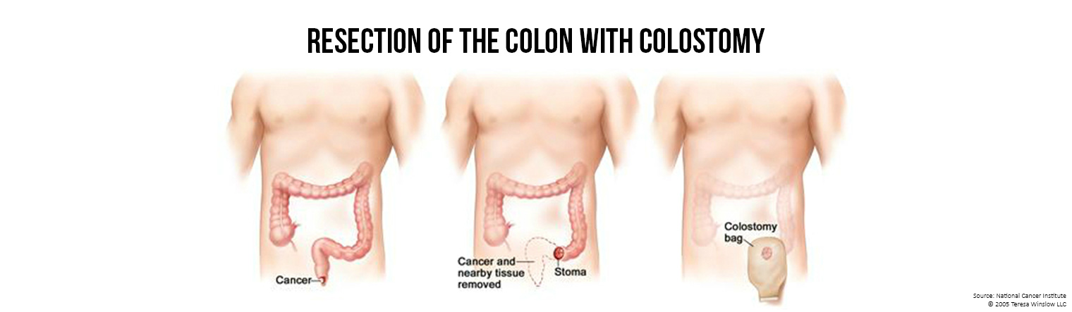 Banner Resection and Colostomy